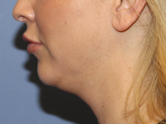 Before Kybella Before