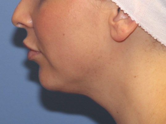 Before Kybella After