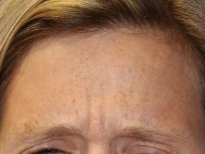 Forehead BOTOX Results Before
