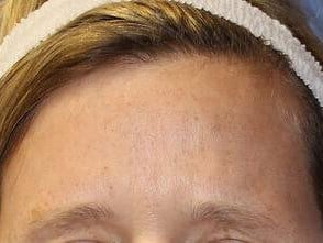 Forehead BOTOX Results After