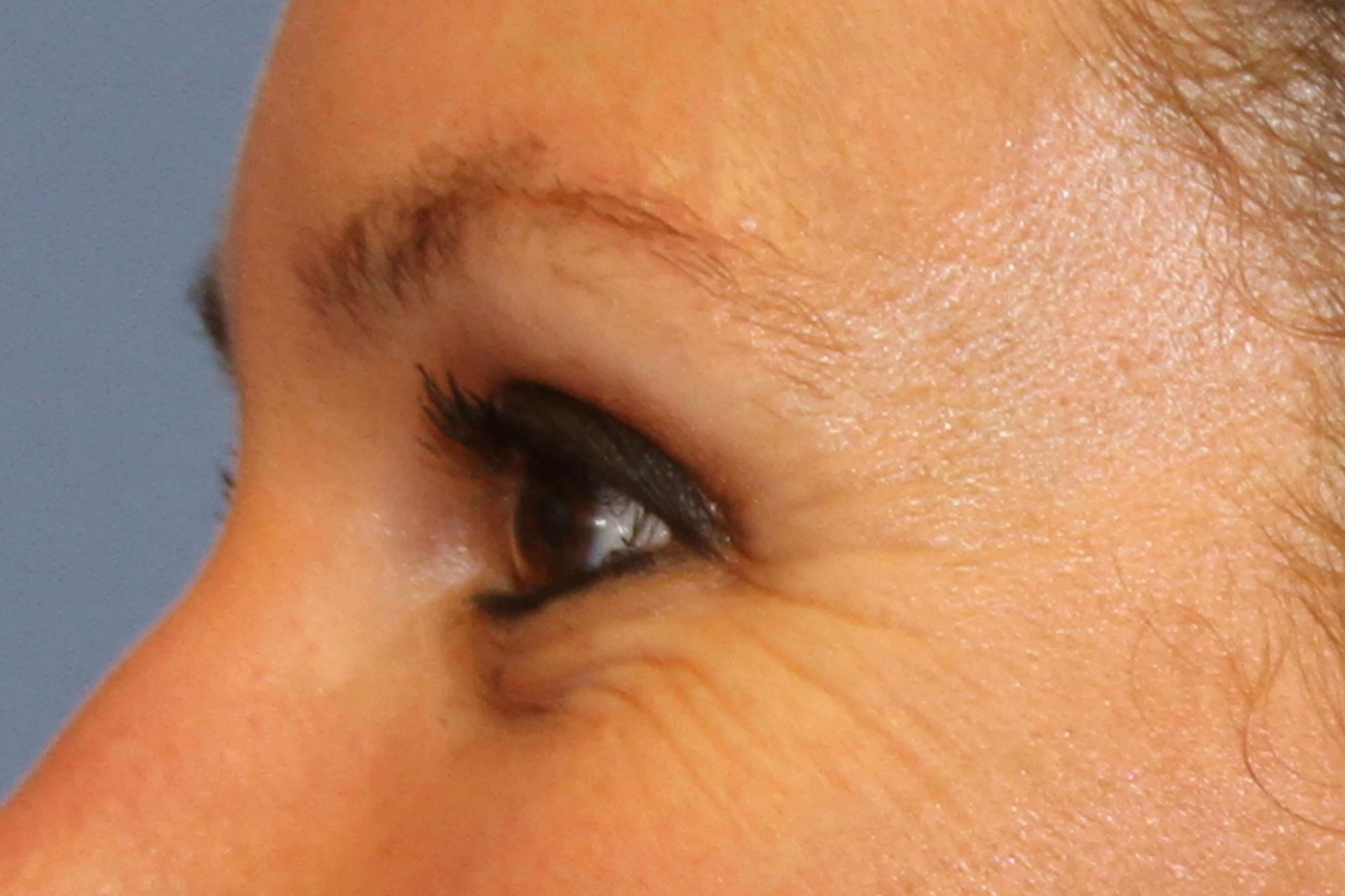Crow's feet treated with Botox Before