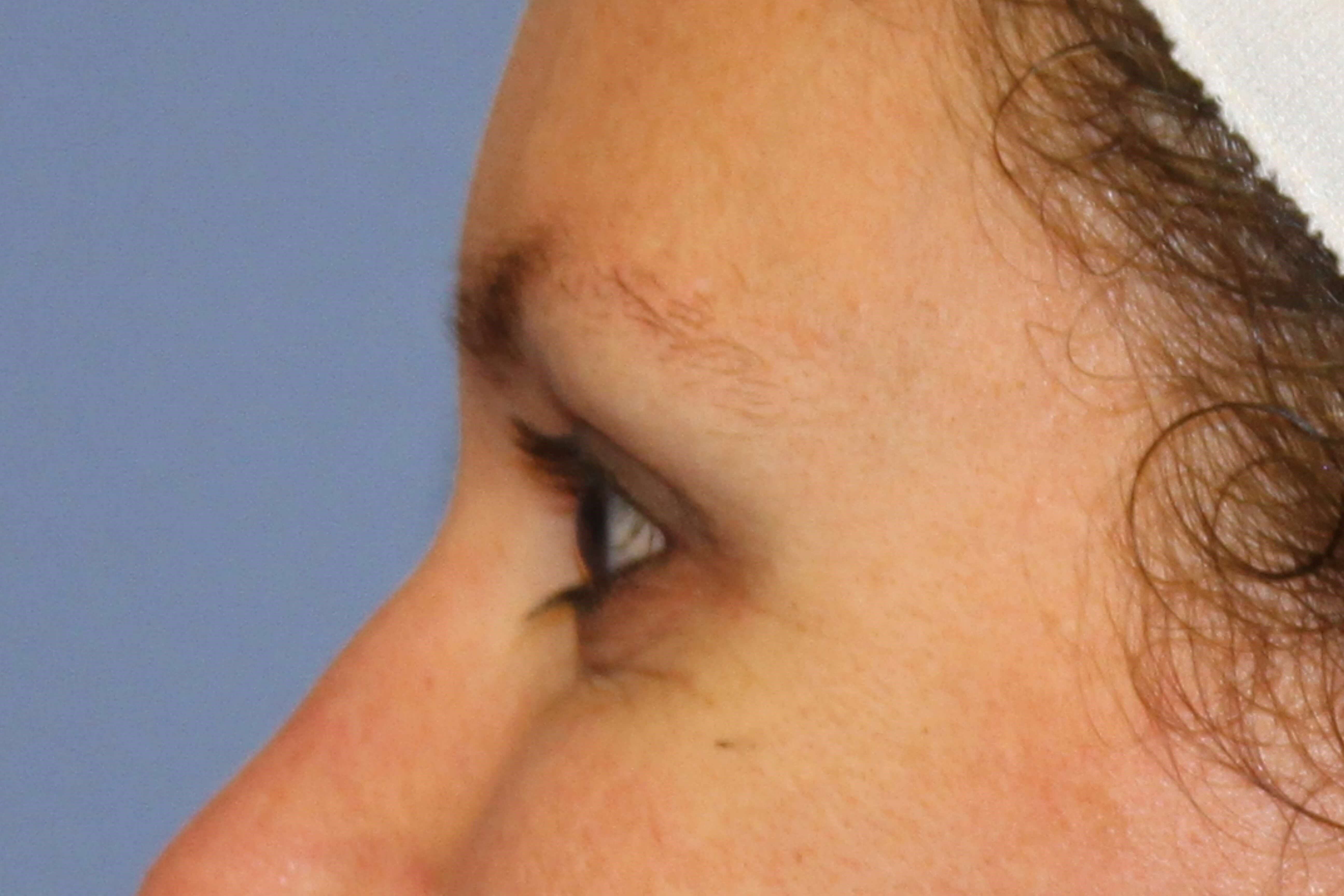 Crow's feet treated with Botox After