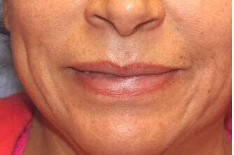 Lip Augmentation Before
