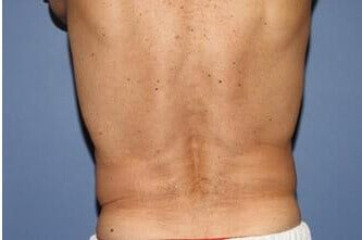 CoolSculpting After