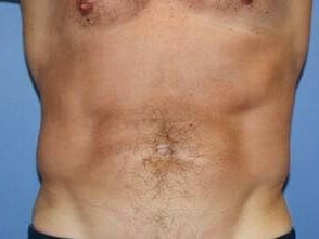 CoolSculpting - View Two Before