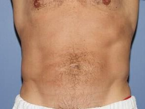 CoolSculpting - View Two After
