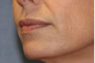 Injectable Fillers, Oblique Before
