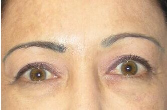 Injectable Fillers, Frontal After