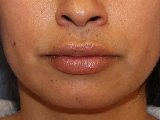Lip injection with Juvederm Ultra Plus XC