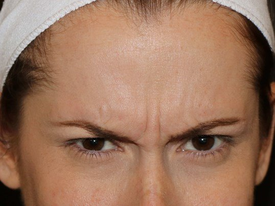 Botox to glabella Before