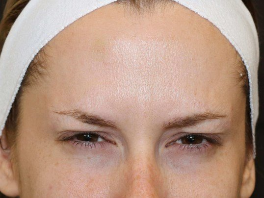 Botox to glabella After