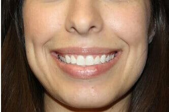 Gummy Smile BOTOX Results After