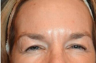 BOTOX Before and After Photos After