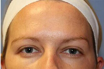 BOTOX Before and After After