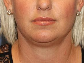 Kybella Front View After