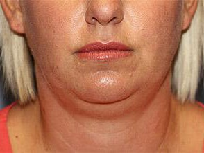 Kybella Front View Before