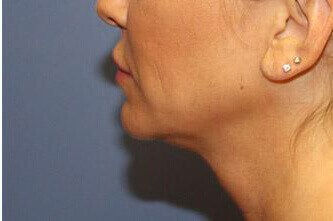 Kybella Before and After After