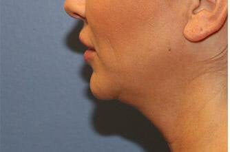 Kybella Before and After Before