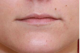 Juvederm Before and After Before