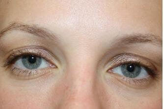 Eyelash Enhancer Before