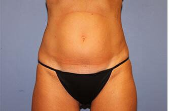 Cool Sculpting - Front View Before