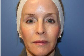 Laser Skin Resurfacing After