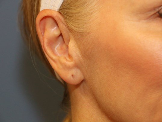 Ear Lobe Filler After