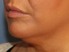 Injectable Fillers, Oblique After