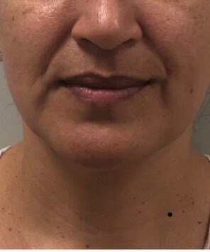 Thread Lift Non surgical Before