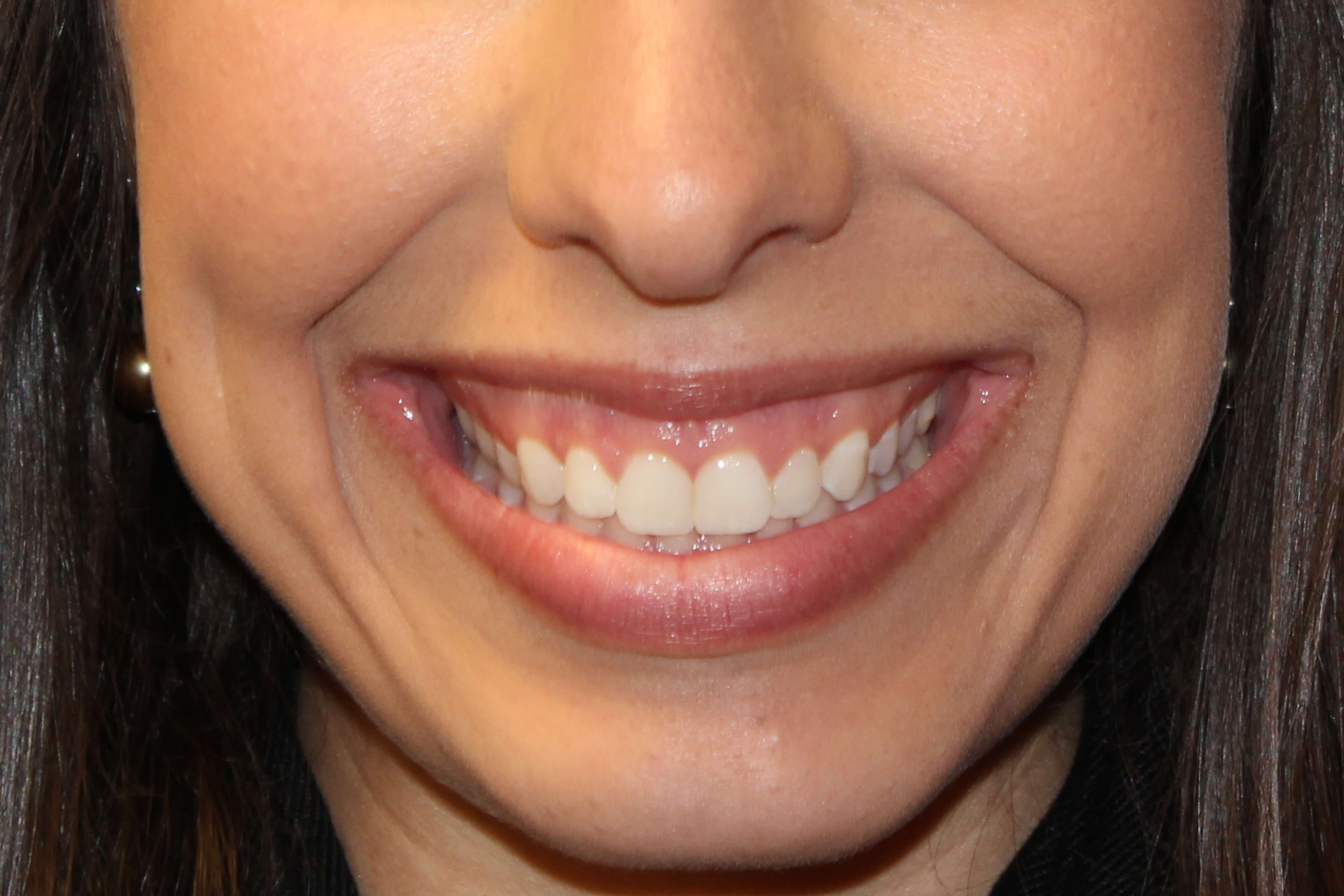 Gummy Smile BOTOX Results Before