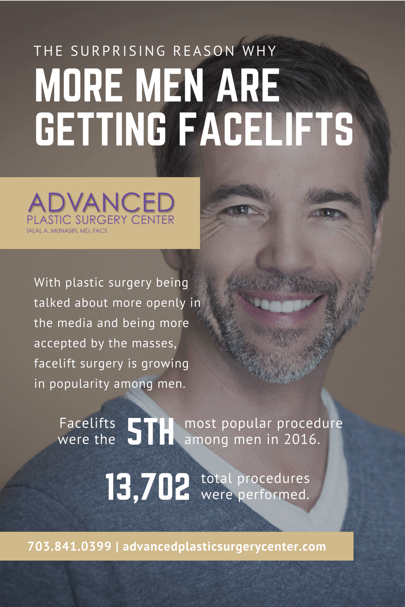 Facelifts