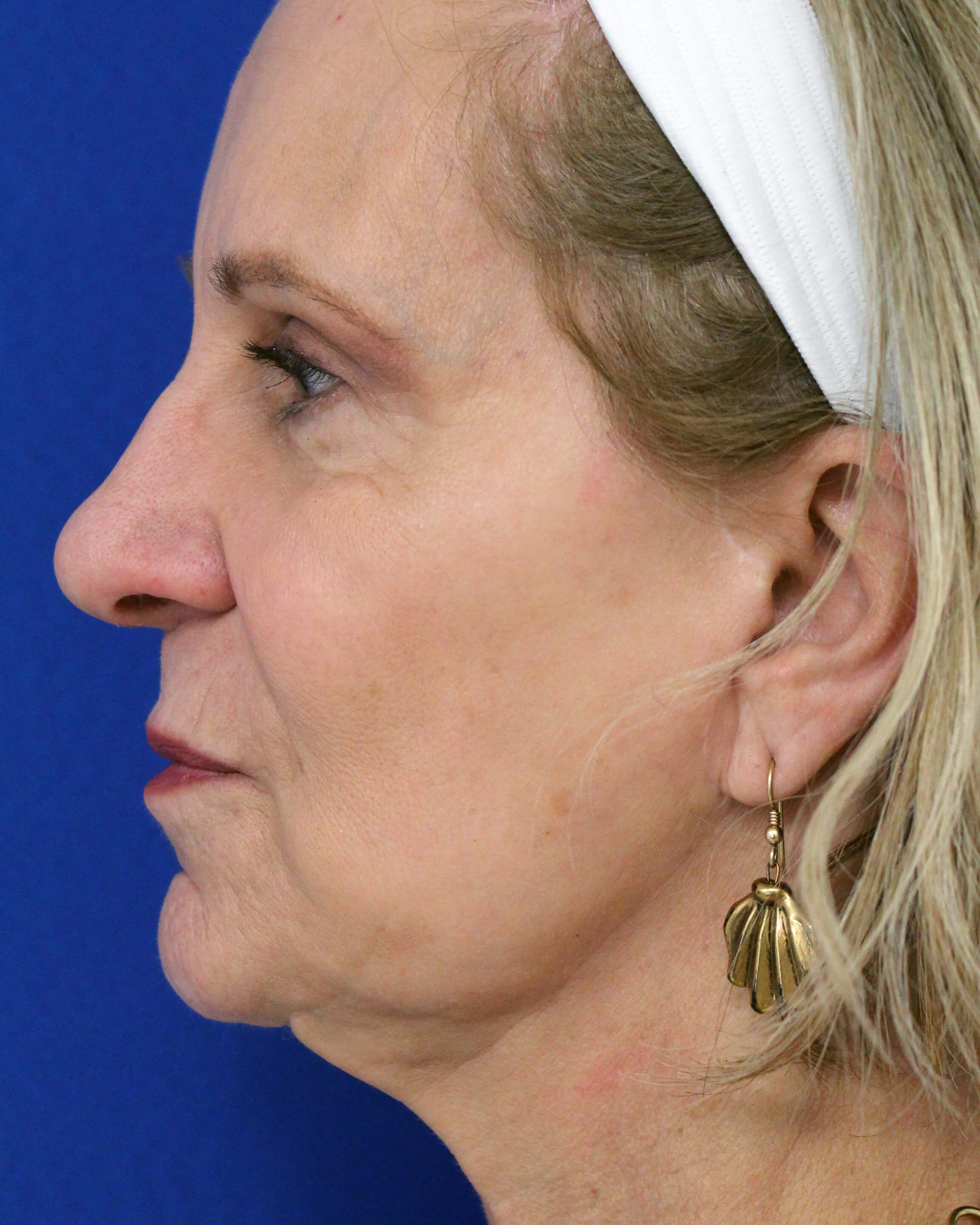 Facelift with fat transfer Before- lateral view