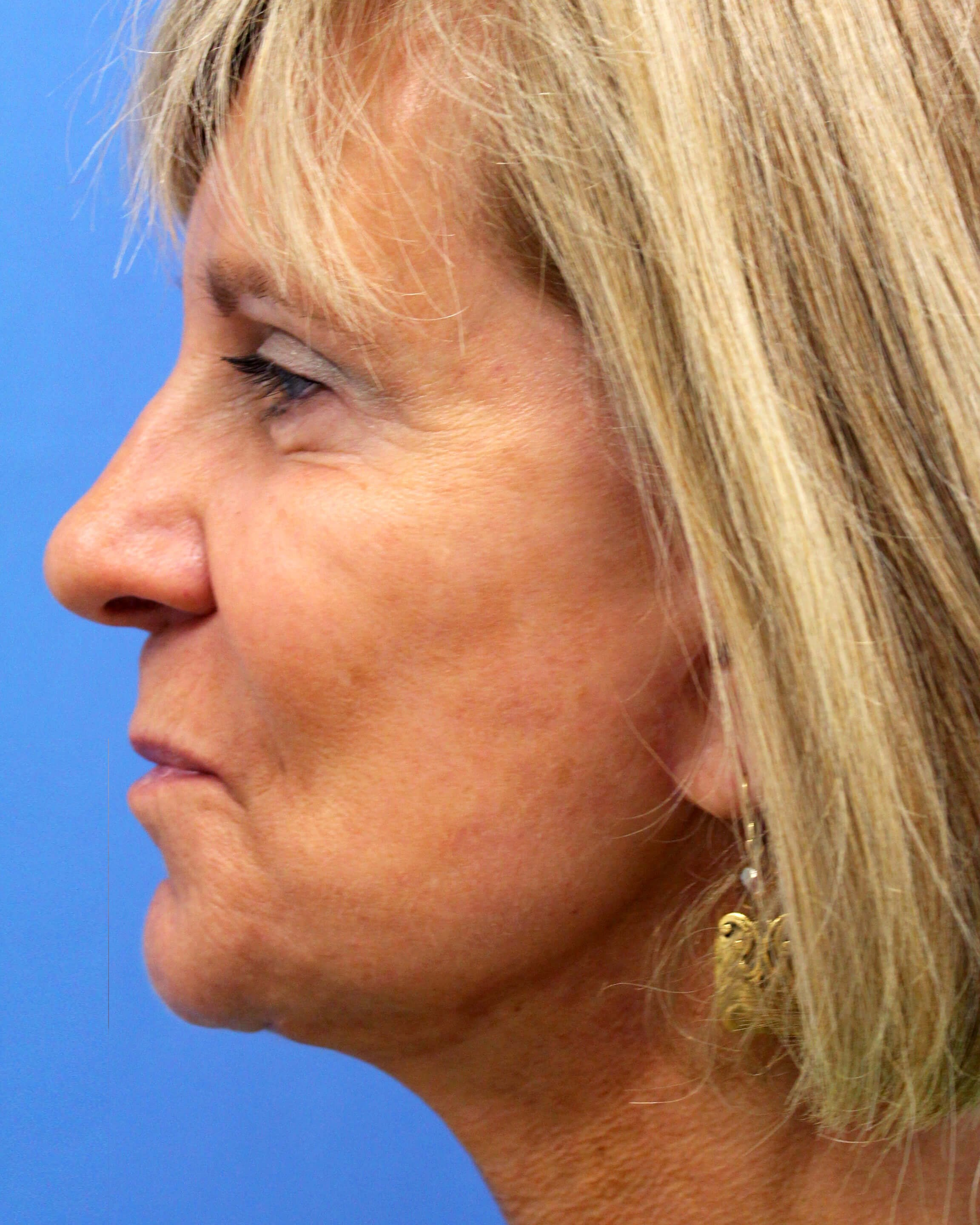 Facelift with fat transfer After- lateral view