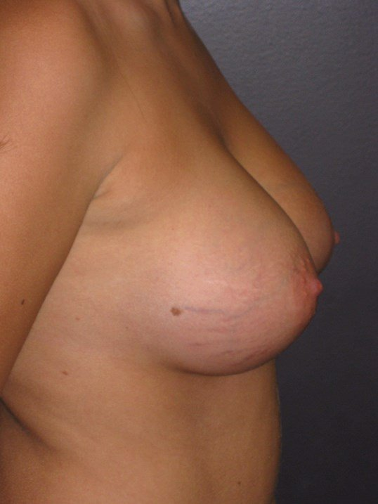 Breast augmentation 350 cc After