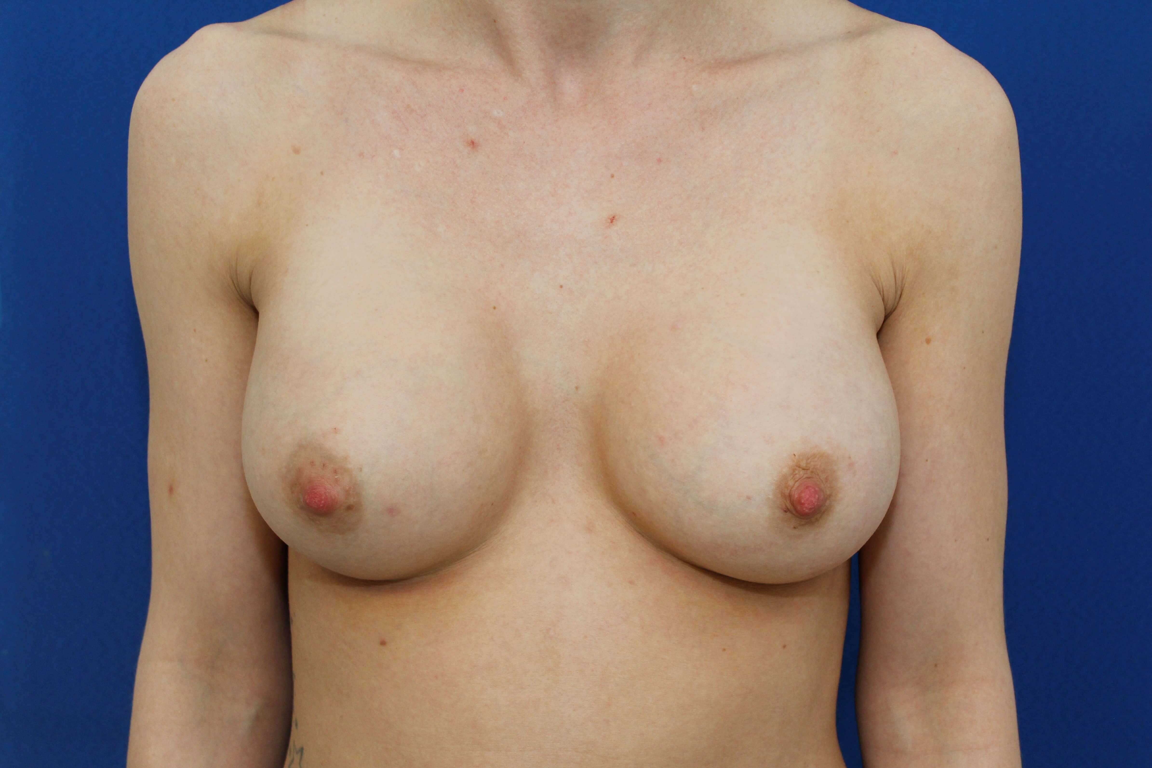 Breast augmentation, 371 cc After