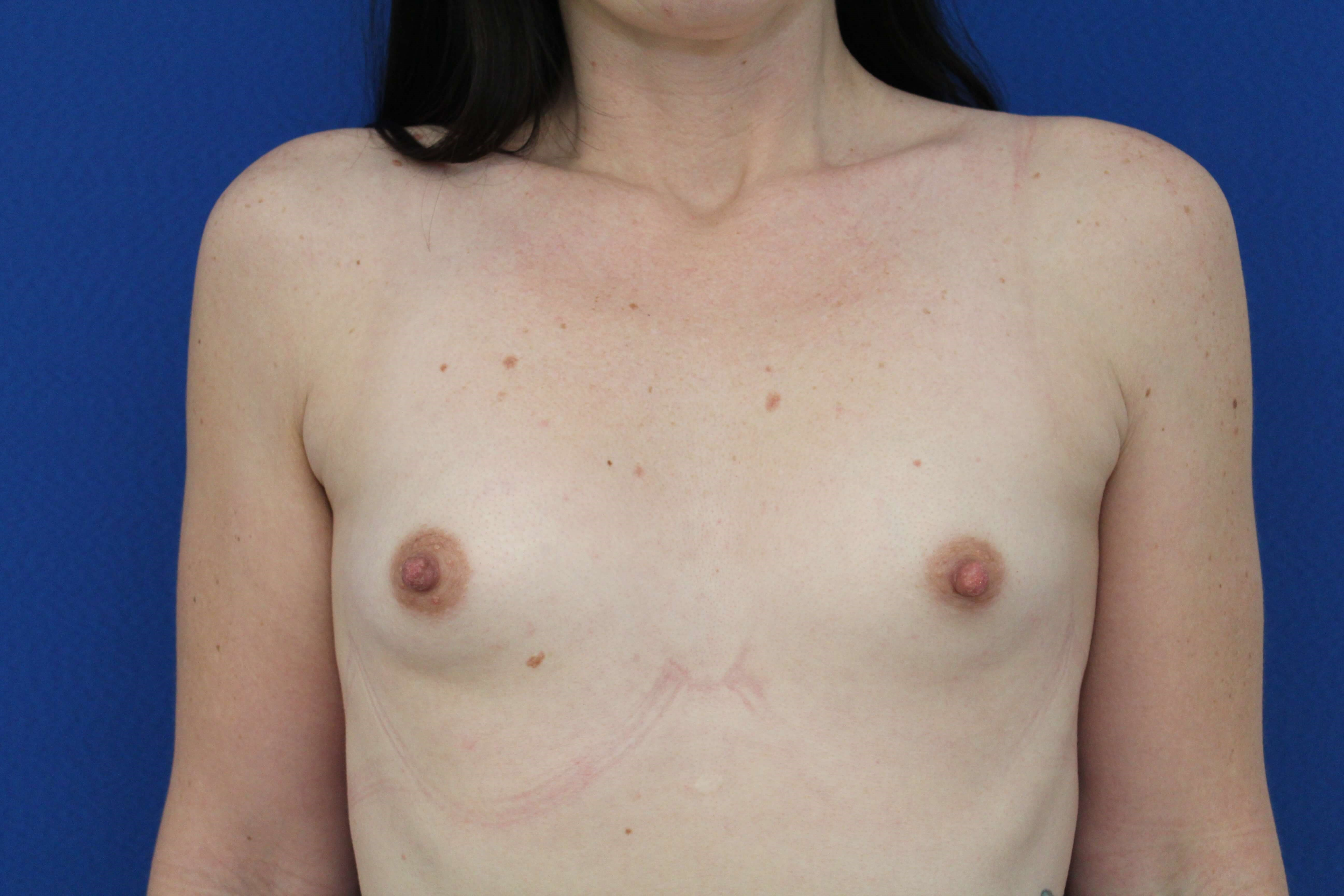 Breast augmentation 350cc Before