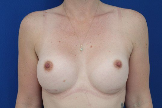 Breast augmentation 350cc After