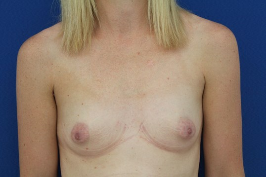 Breast augmentation 350 cc Before