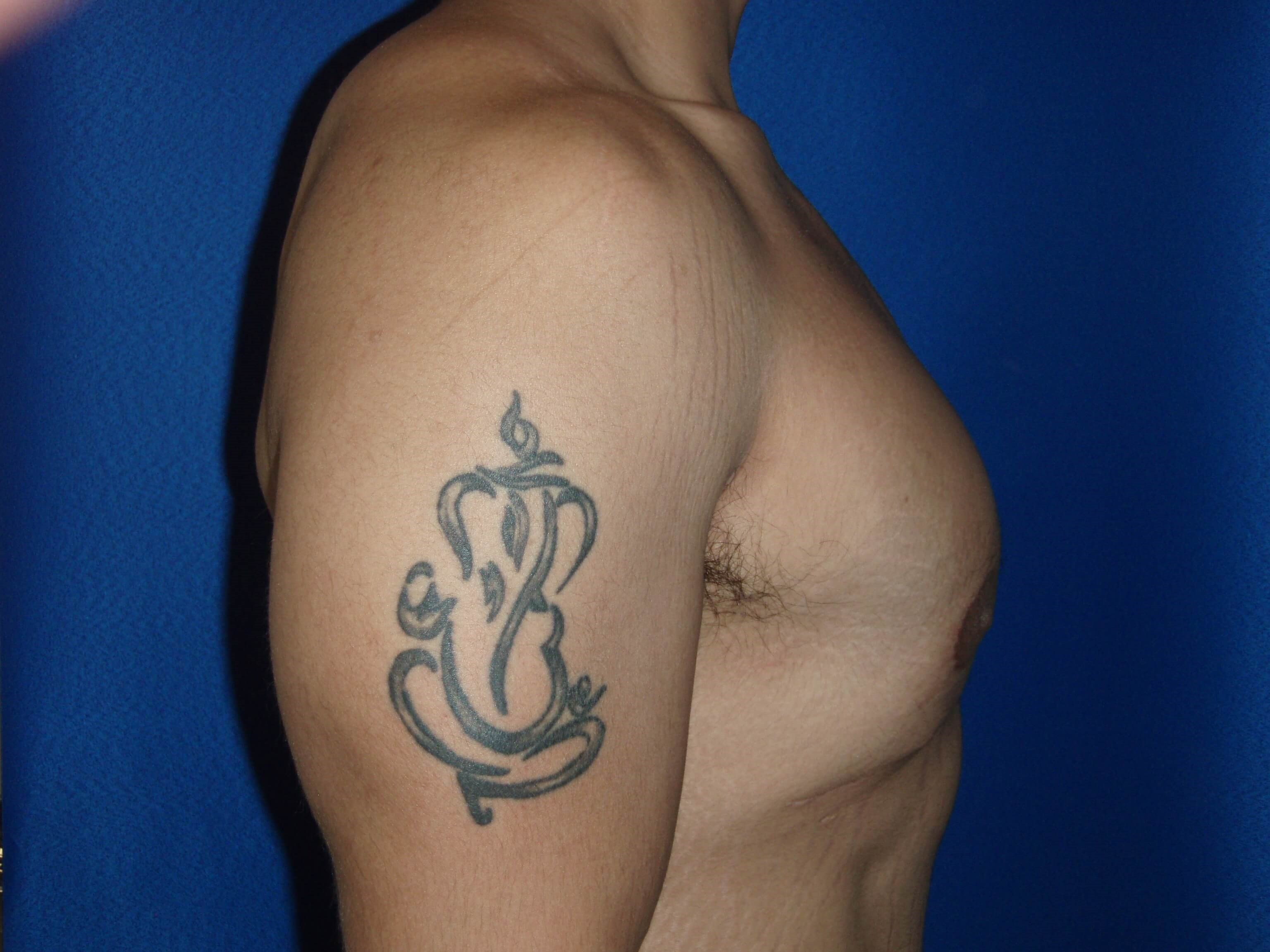 Gynecomastic Surgery After