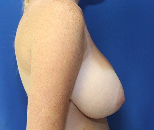 Breast Reduction with Lift Before