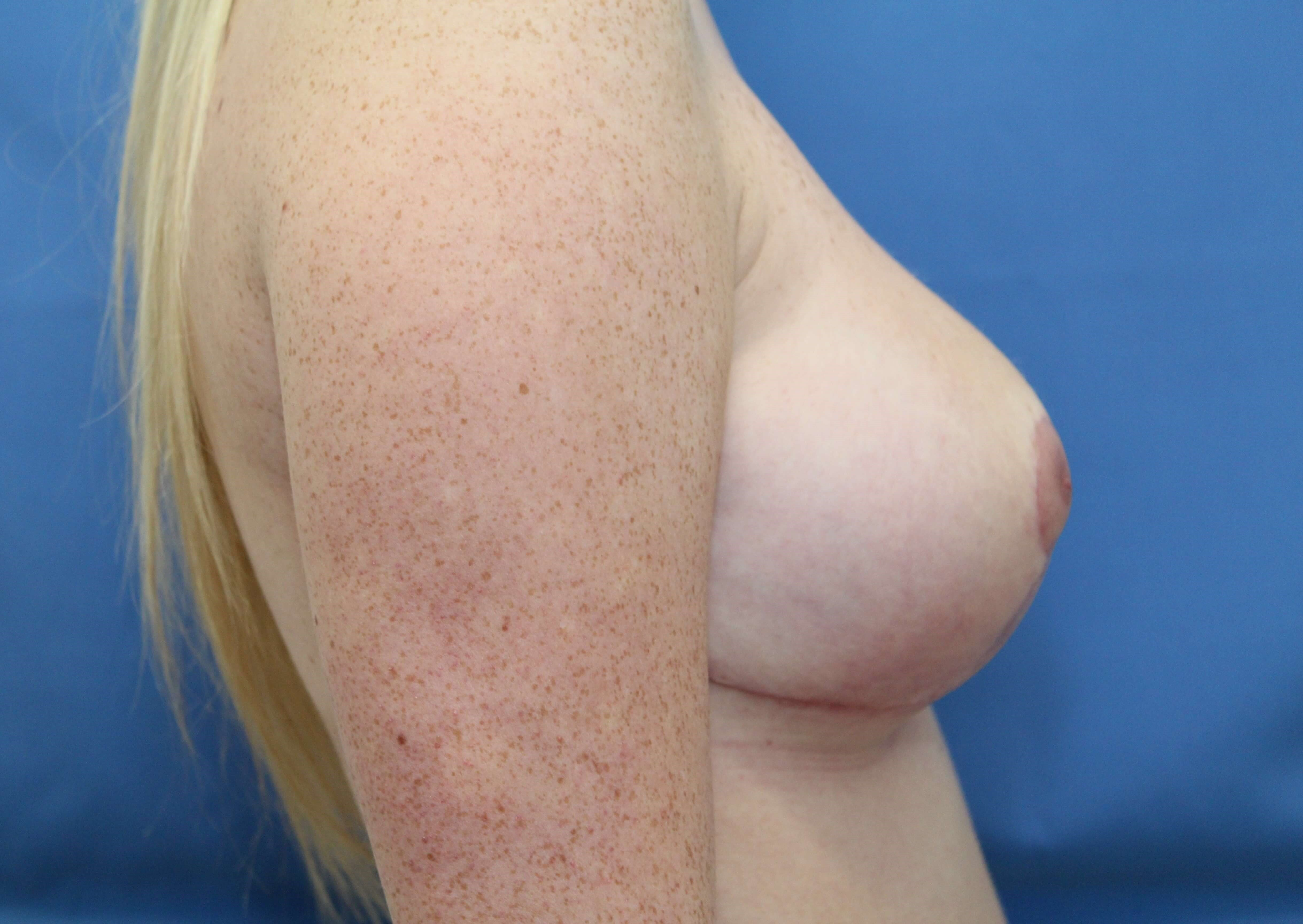 Breast Reduction with Lift After