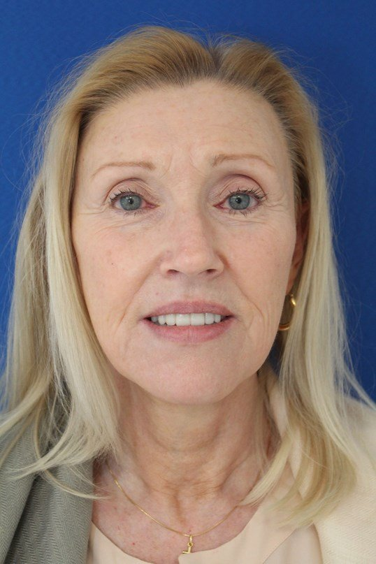 Facelift, lower eyelid surgery Before