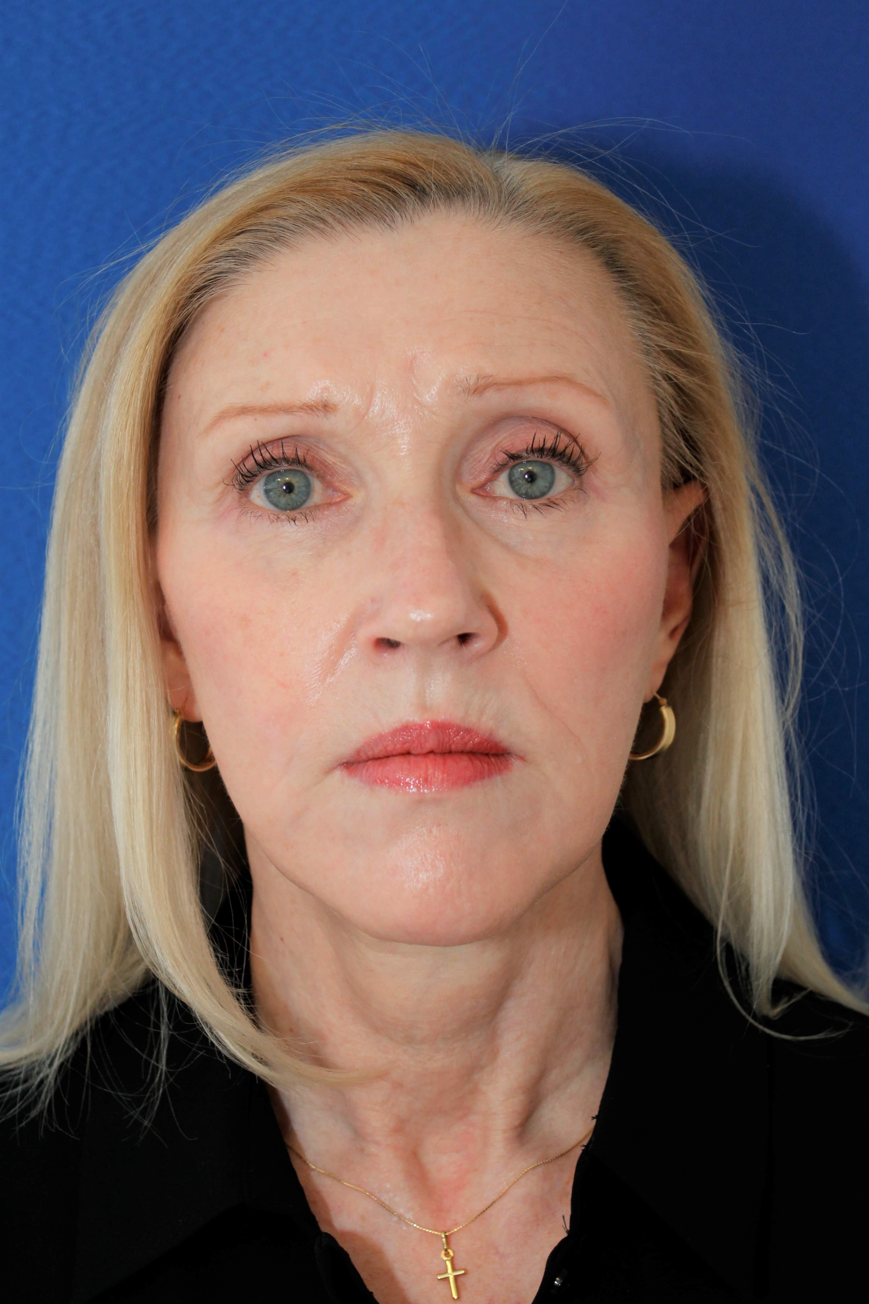 Facelift, lower eyelid surgery After