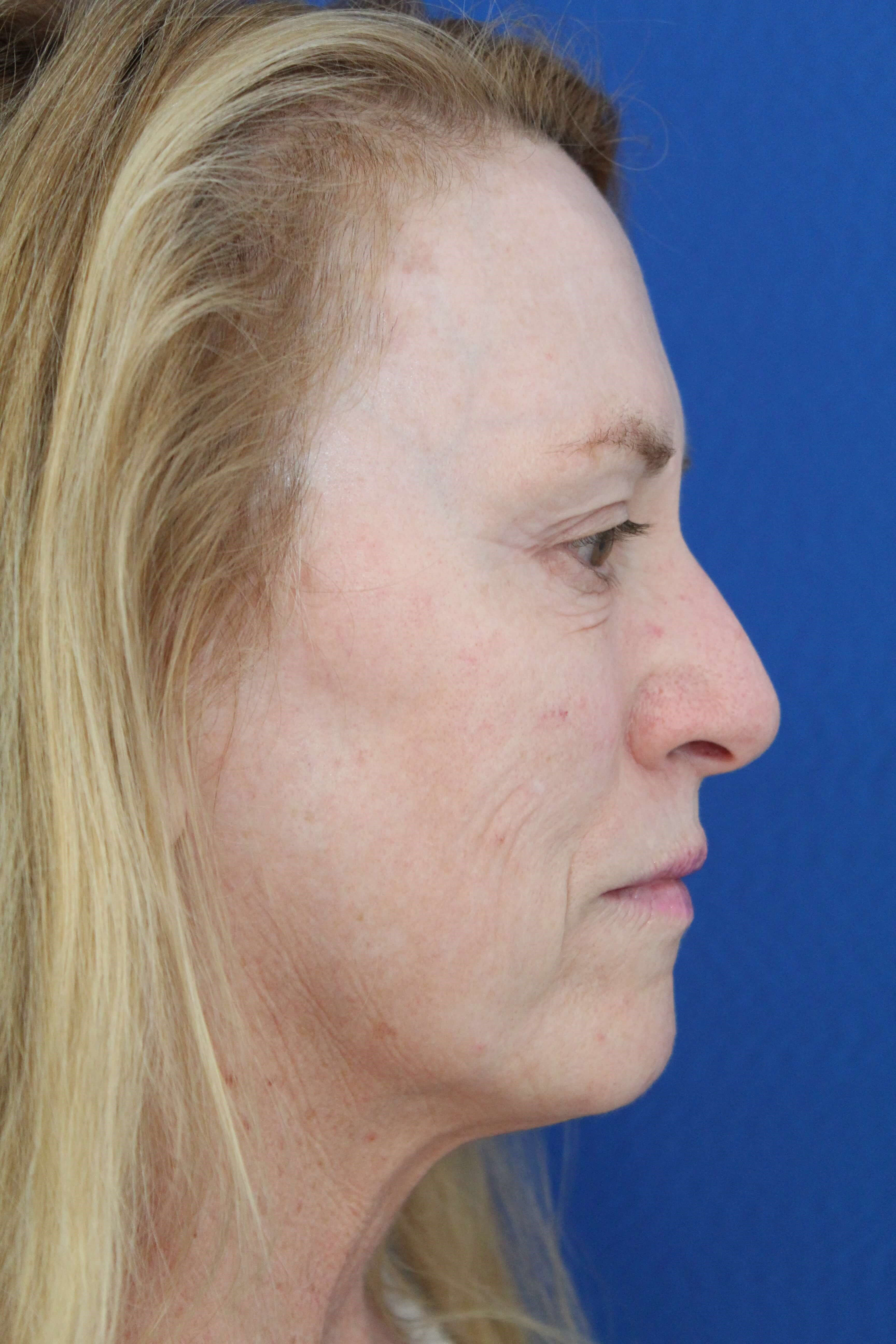 Facelift surgery with CO2 Before