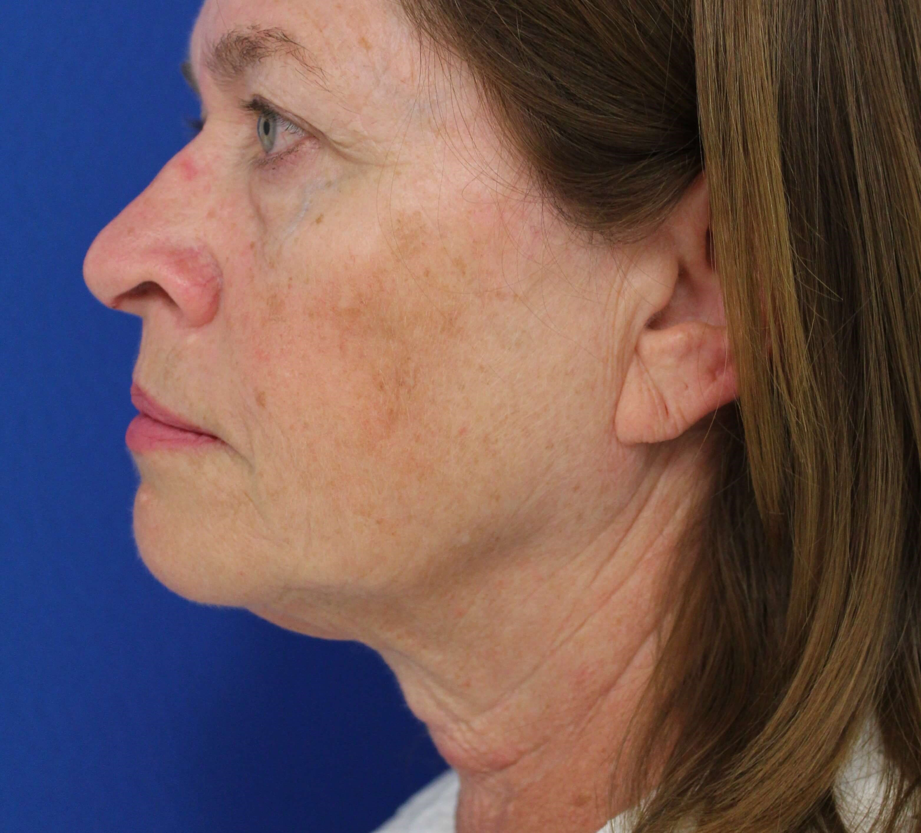 Facelift surgery Before