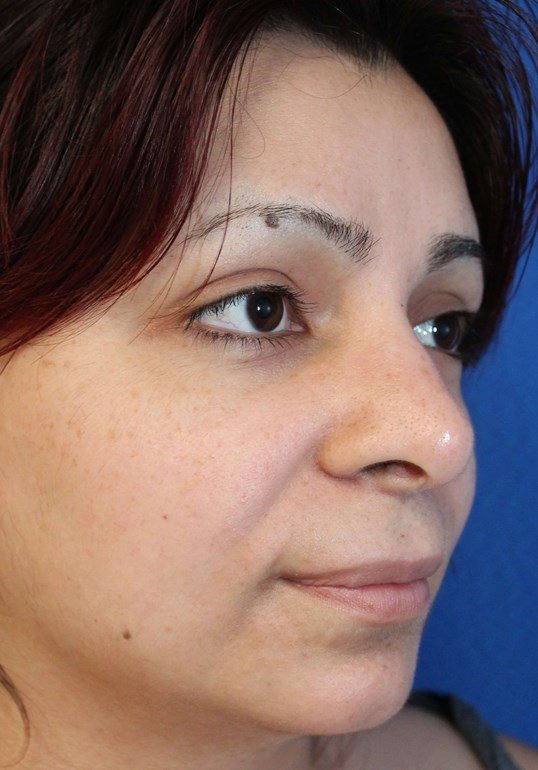 Rhinoplasty Surgery After