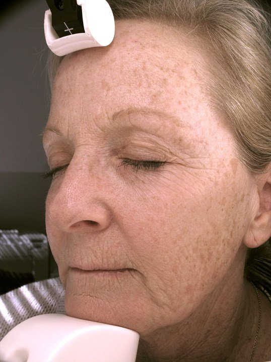 Fraxel skin resurfacing Before