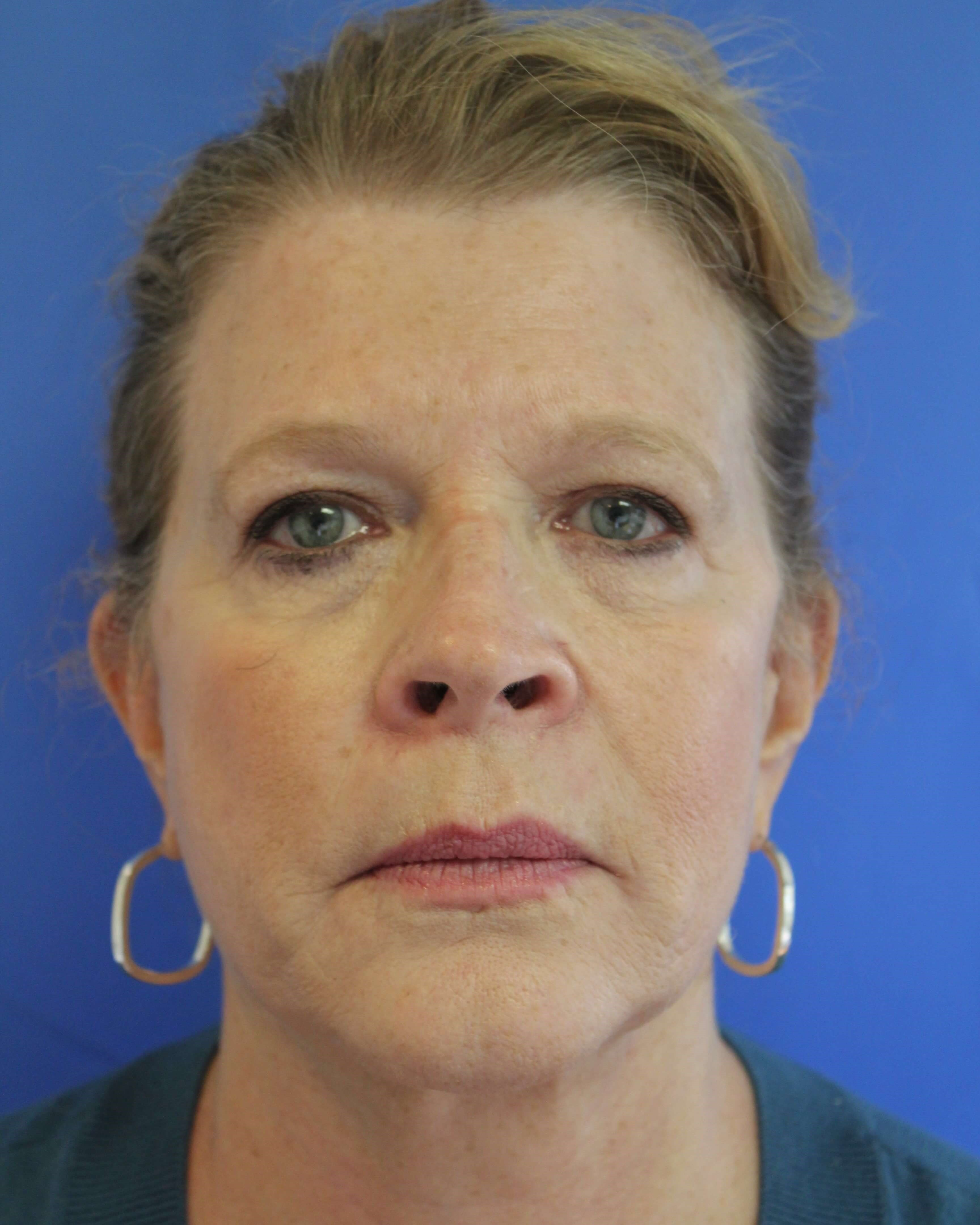 Facelift, CO2, browlift After