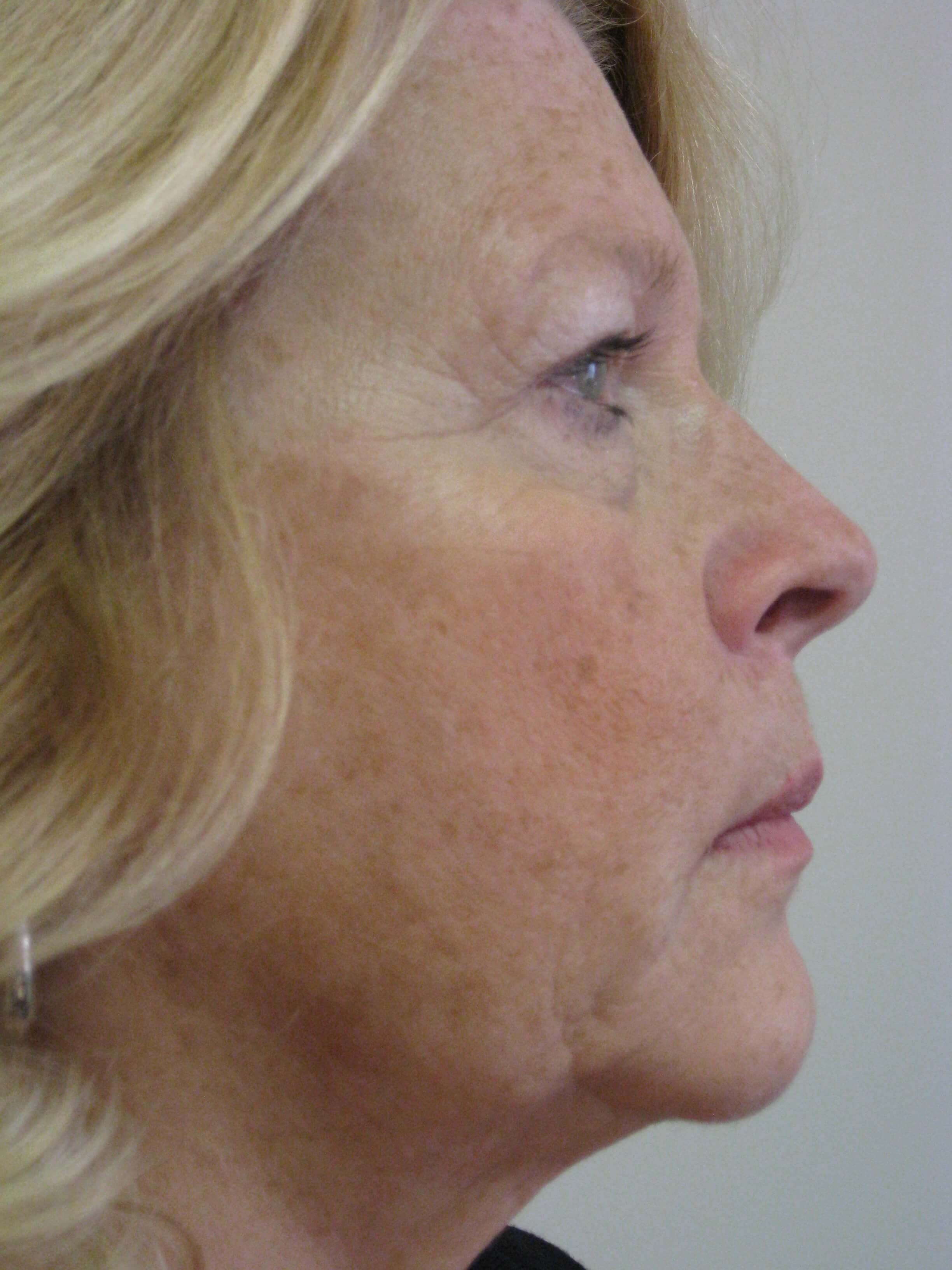 Facelift, CO2, browlift Before