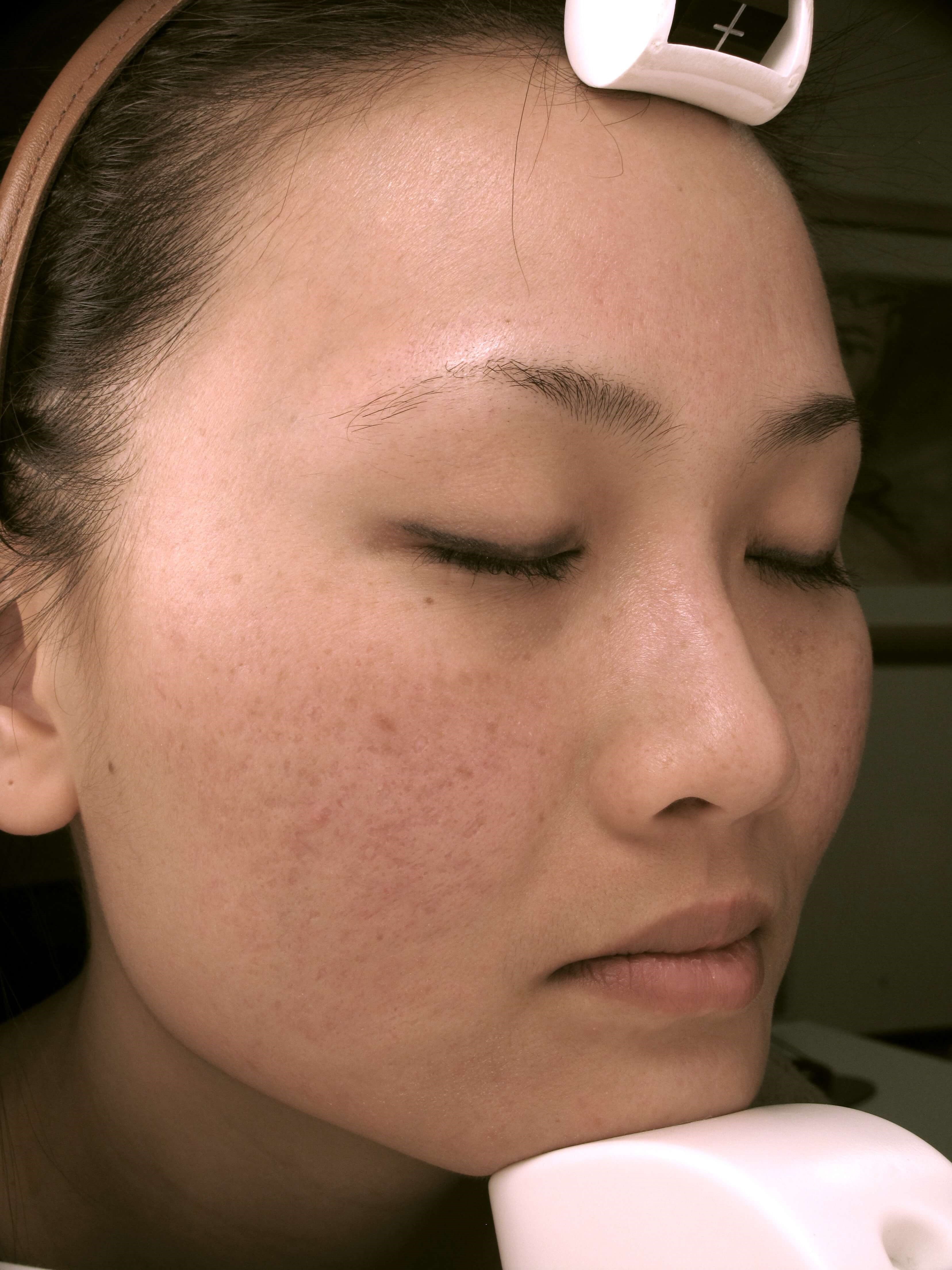 Fraxel skin resurfacing After